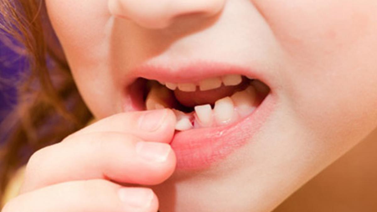 Nội nha răng sữa tốt nhất nên thực hiện khi nào?